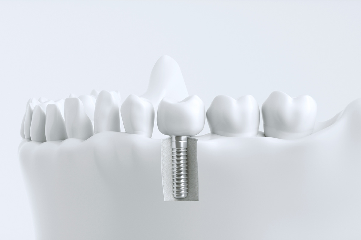 Rendering eines Gebisses mit Implantat