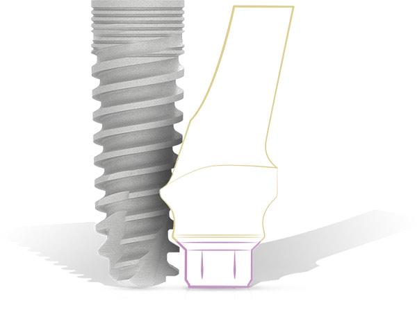 Knochenaufbau für Implantate um so optimalen Halt zu gewährleisten