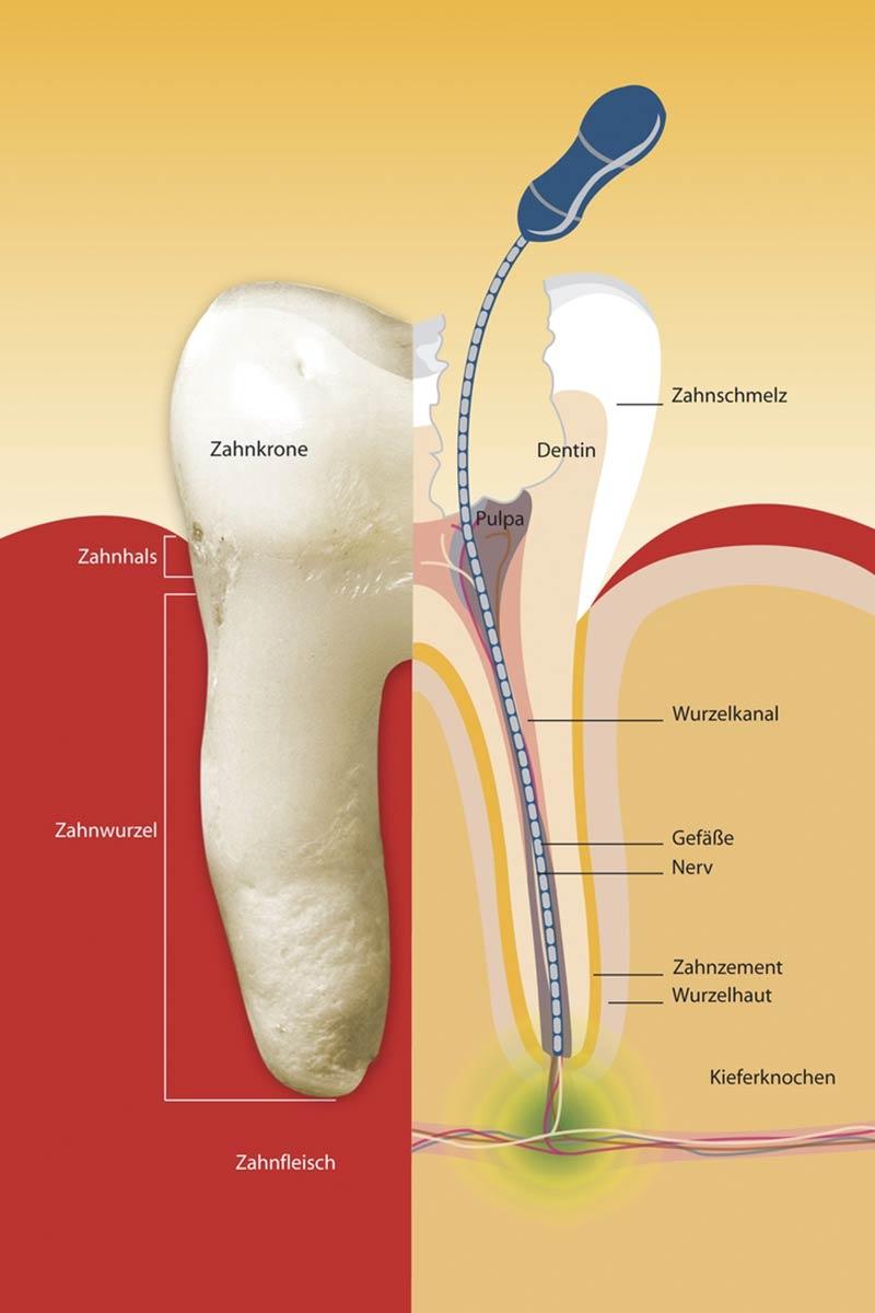 Schematische Darstellung einer Wurzelbehandlung