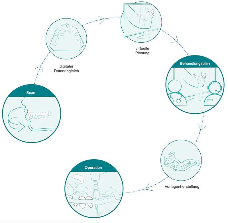 Die navigierte Implantation erfolgt Computergestützt im 3D Verfahren