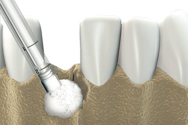 Röntgenaufnahme erfolgreich gesetzter Implantate mit vorhergegangener Socket Preservation